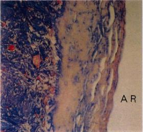 セメント質の光顕写真(脱標本)