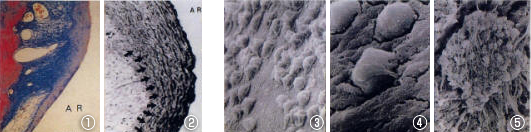 生体活性セラミクス人工歯根に付着する歯周靭帯とセメント芽細胞の光学顕微鏡写真(写真1,2)、およびセメント芽細胞のSEM像(写真3,4,5)